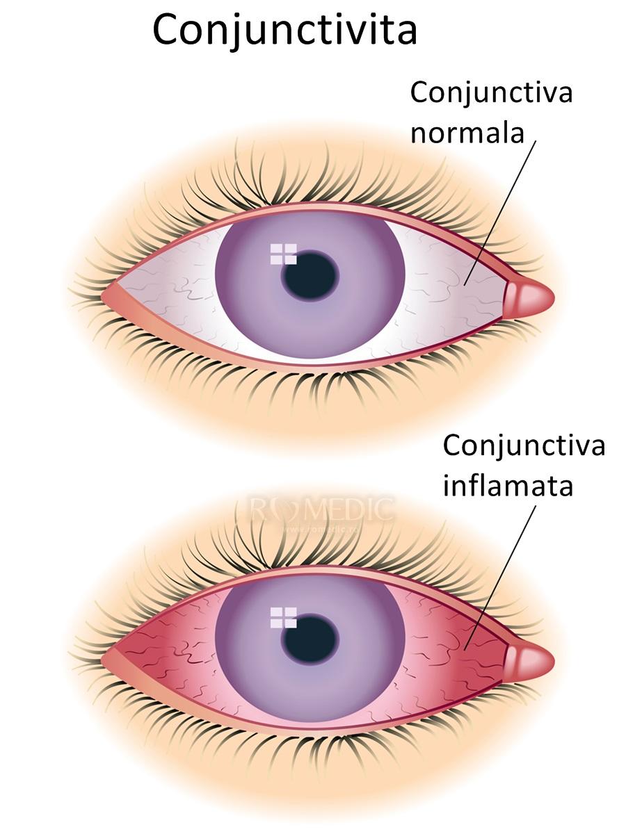 boală sistemică infecțioasă-alergică a țesutului conjunctiv