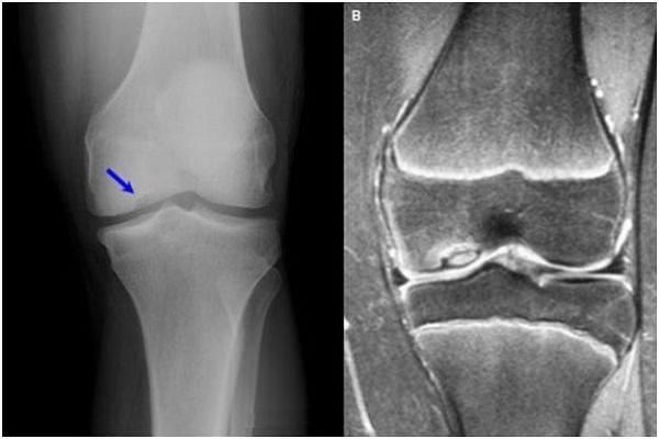 inflamația genunchiului la interior unde articulațiile sunt tratate în Magnitogorsk