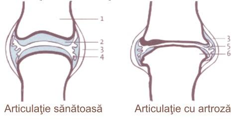 inflamație articulară infecțioasă tratament artroză difuză