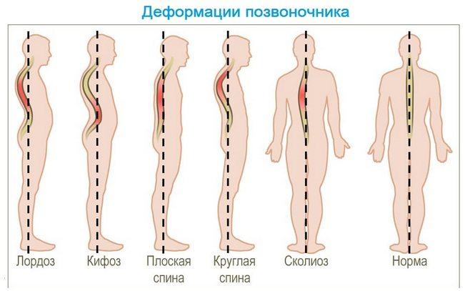 ketane pentru dureri la nivelul articulațiilor și mușchilor)