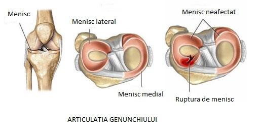 ruperea istoricului medical al meniscului genunchiului