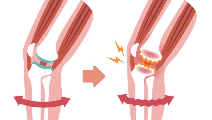 tratamentul cornului la genunchi
