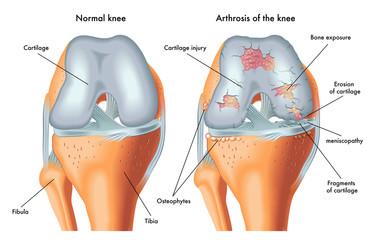 Tratamentul chirurgical al artrozei deformante a tuturor articulațiilor