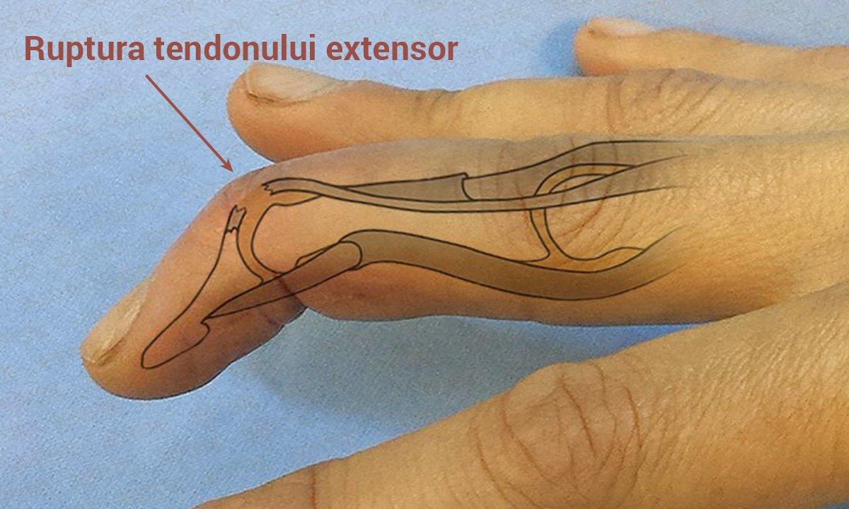 Durere în articulațiile degetului mic și degetul inelar