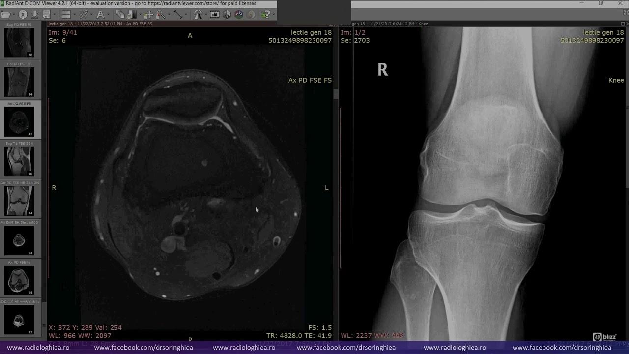 Teraflex pentru tratamentul genunchiului