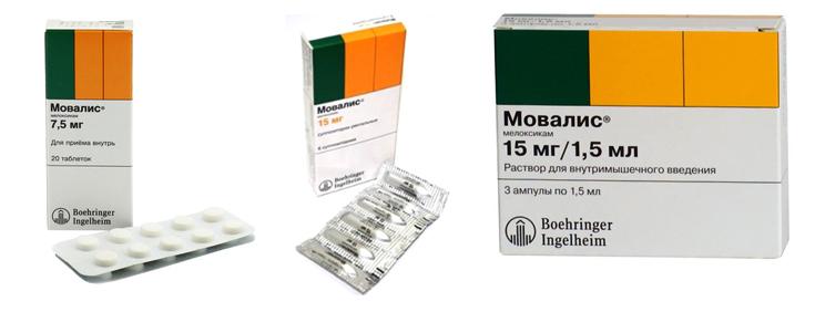 boli inflamatorii ale țesuturilor moi și articulațiilor