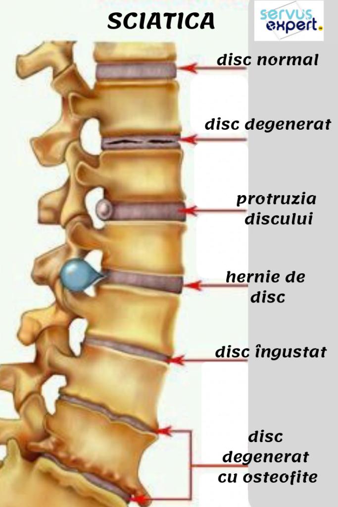 Osteocondroza lombara - centru-respiro.ro