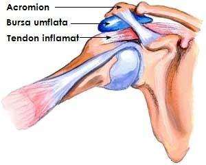 simptome de medicație pentru bursită de șold