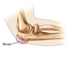 tratamentul bursitei articulației cotului cu diprospan)
