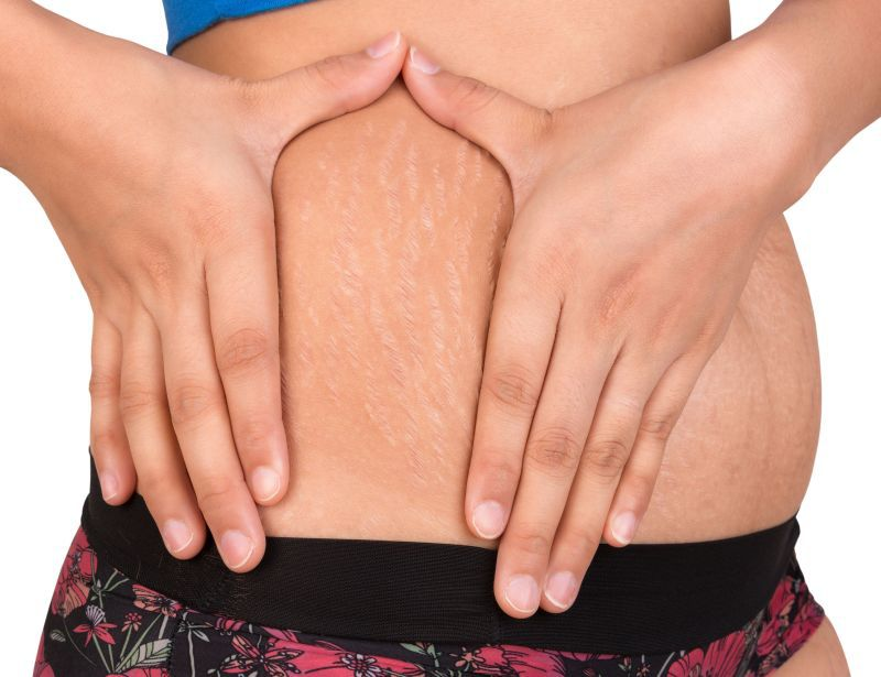 remedii pentru vergeturi articulare dureri articulare subfebrile
