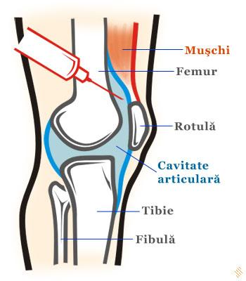 fluid în cavitatea articulară a genunchiului