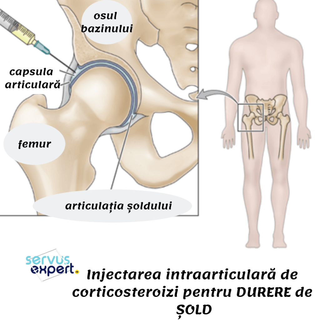 durere cu bursita articulației șoldului