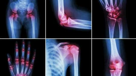 dacă dureri articulare severe)