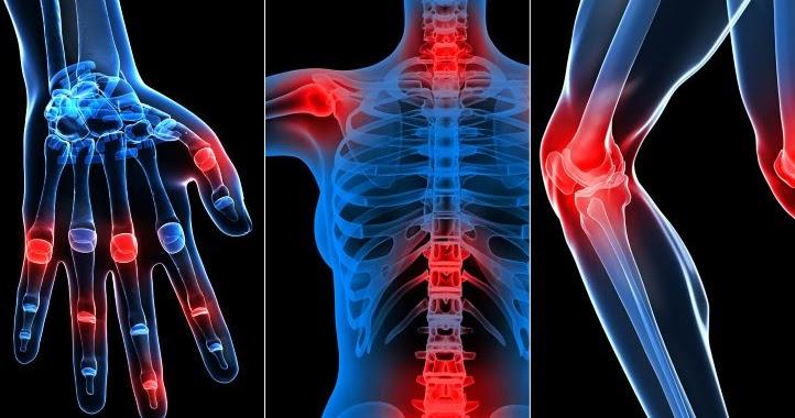 modul în care artroza afectează articulațiile