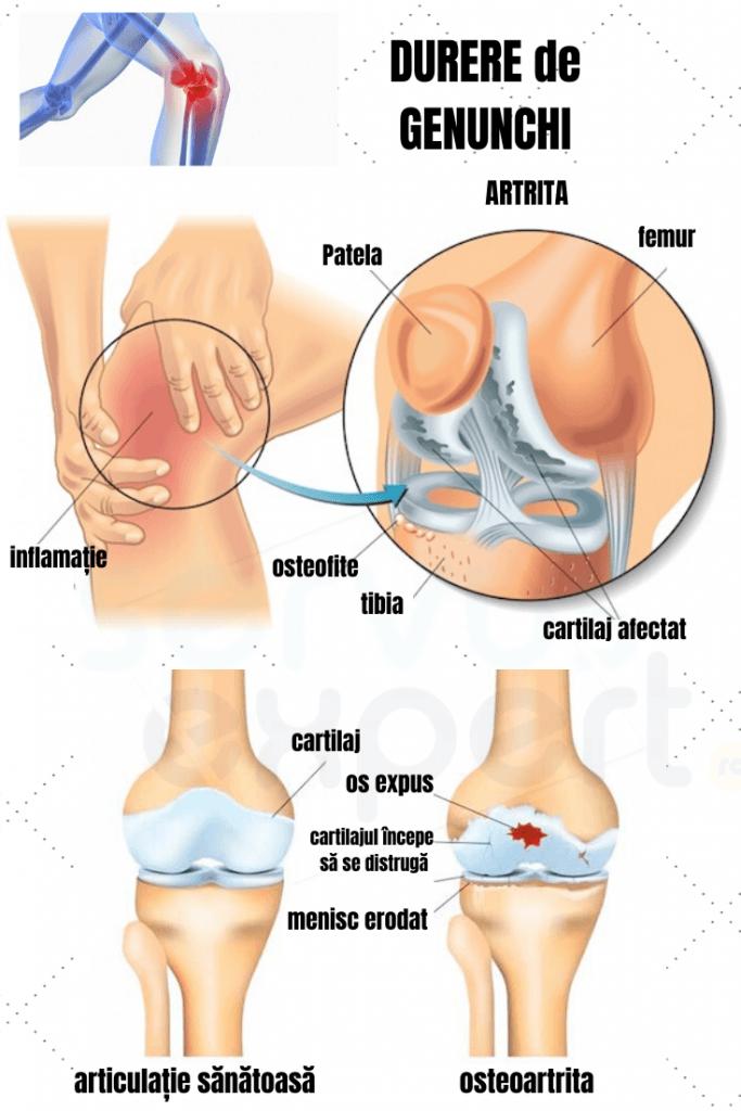 durere persistentă la nivelul golului articulației genunchiului)