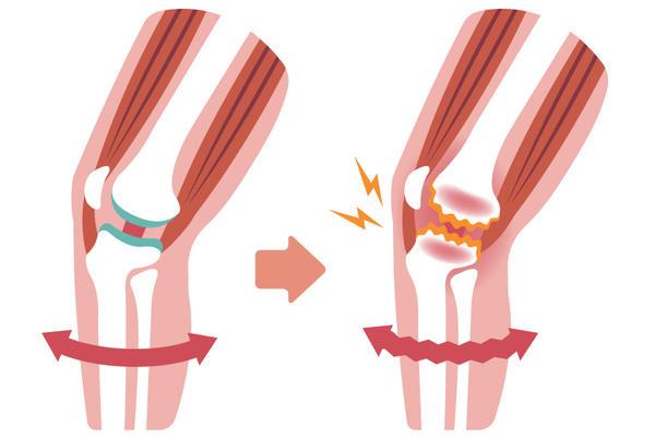 îngustarea spațiului articular al tratamentului articulației genunchiului)