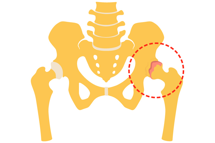 semne și tratament al artritei articulației șoldului)