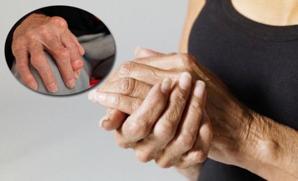 artroza coloanei lombare decât a trata reteta minune pentru refacerea mobilitatii articulare
