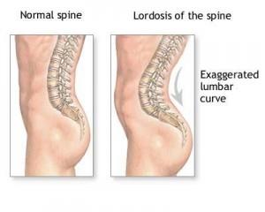 boli ale coloanei vertebrale și articulare)