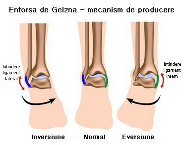 tratamentul simptomelor gleznei și tratament