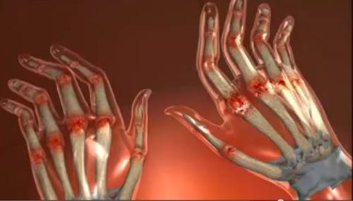 distrugerea articulației cu artrita