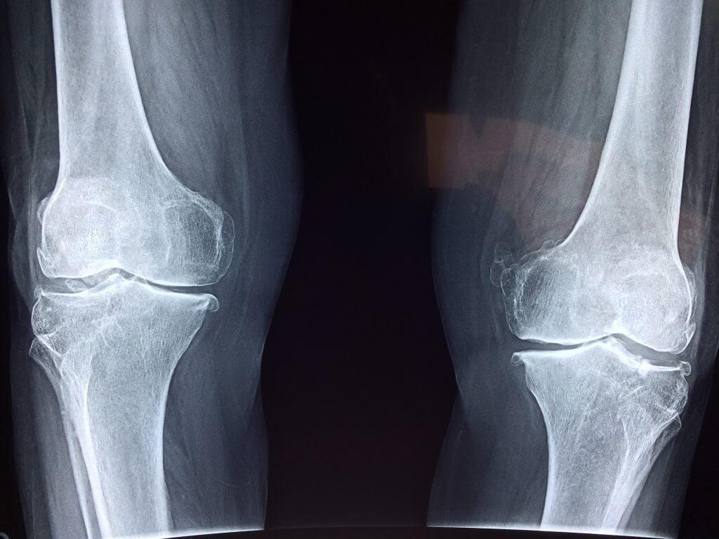 Artroza 3-4 grade a genunchiului