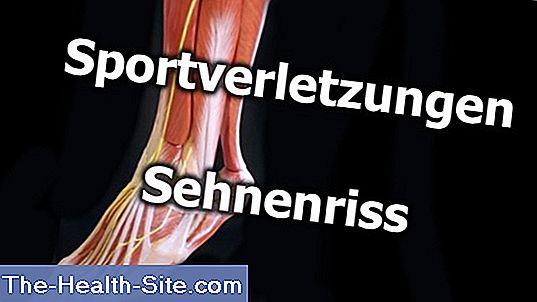 boala articulației și a tendoanelor
