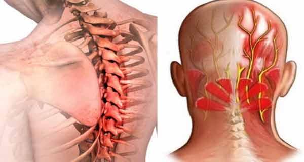 articulațiilor și tratamentul nevralgiei)