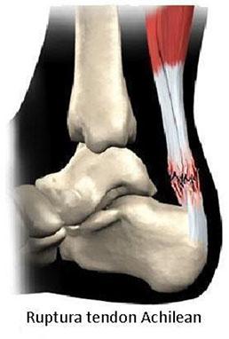 articulațiile tendonului piciorului și tratamentul acestora)