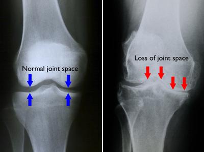 inflamația artrozei genunchiului