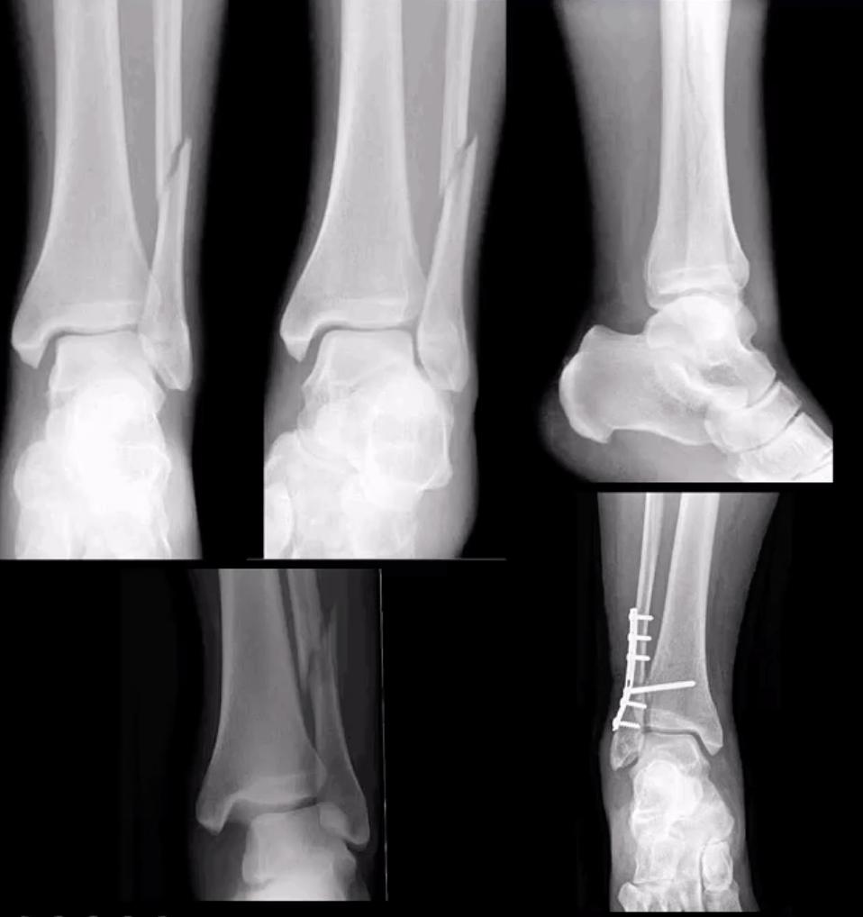 Artrita lisfranc unguent care conține glucozamină și condroitină