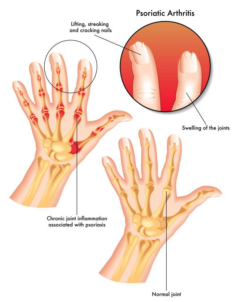 cauzele artritei psoriazice a articulațiilor