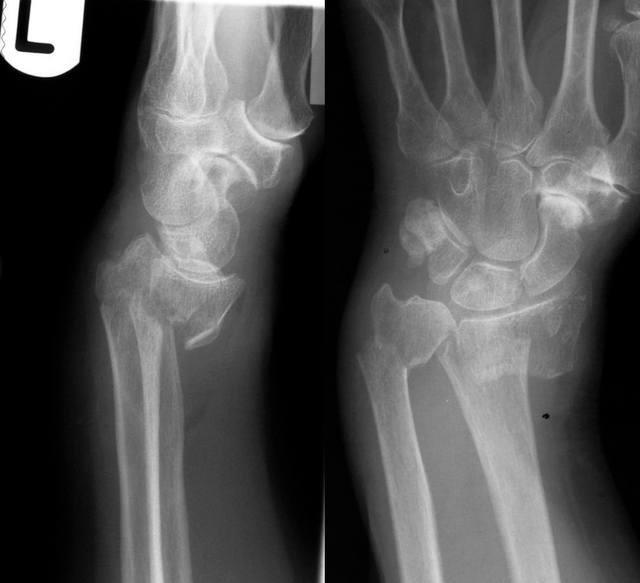 apariția simptomelor migratorii durerii articulare și a tratamentului