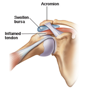 deteriorarea ligamentului colateral lateral al genunchiului tratament pentru bolile genunchiului