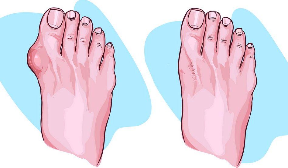 tratamentul chirurgical al artrozei piciorului stadiul inițial de tratament pentru artroza genunchiului