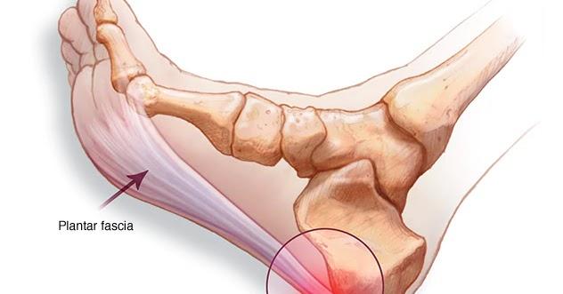 De ce doare articulația din apropierea călcâiului, Afectiunile piciorului si gleznei