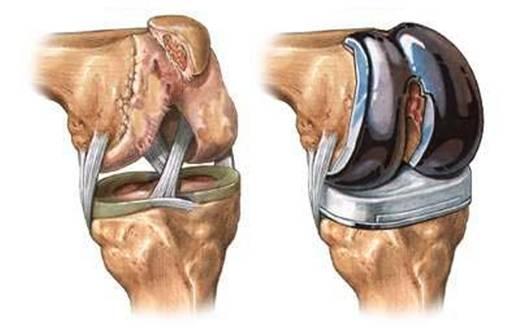лечение левого коленного сустава tratamentul articulațiilor pe mâini