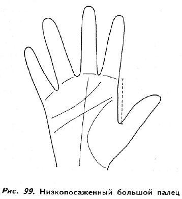 Articulația degetului mare deasupra. Account Options