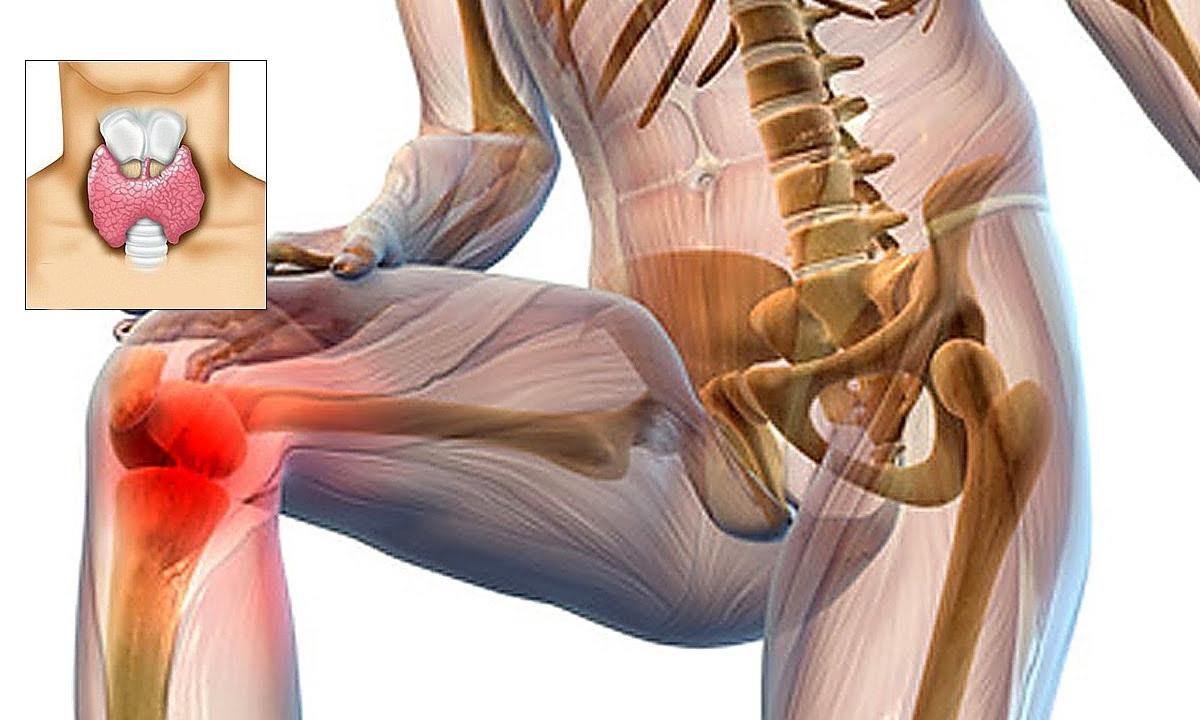 dureri articulare cu tratament cu hipotiroidism