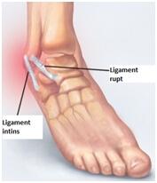 Glezna durere ligament umflare, cauzele durerilor de...