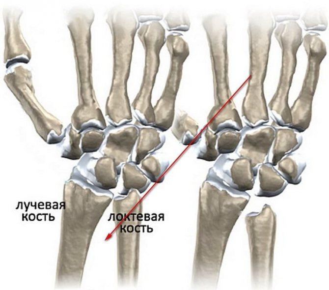 как вылечить остеоартроз лучезапястного сустава)