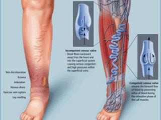 Tratamentul artrozei și varicelor. 5 comments