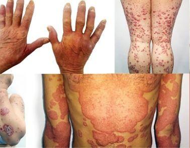 care tratează artrita psoriazică)