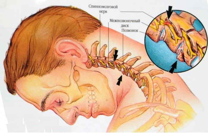osteocondroza unguentului gâtului)