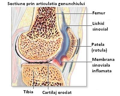 artrita patelă