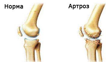 stadiul inițial de tratament pentru artroza genunchiului)
