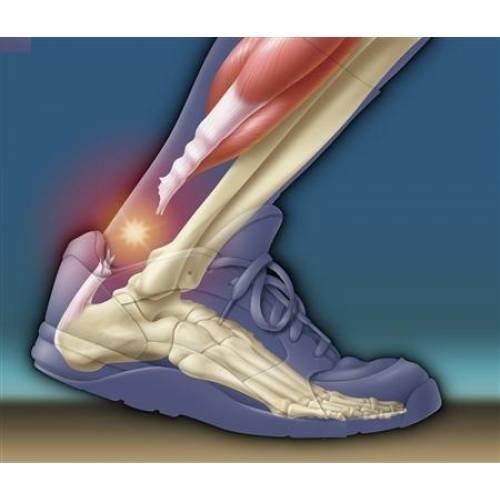 tratăm tendonul articulațiilor picioarelor