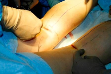 ceea ce este o articulație falsă a genunchiului