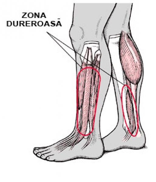 mărirea articulațiilor degetelor de la picioare articulația umflată doare
