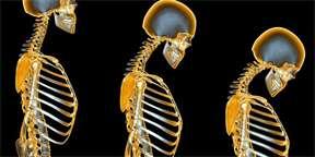 artroza articulației umărului care este tratamentul